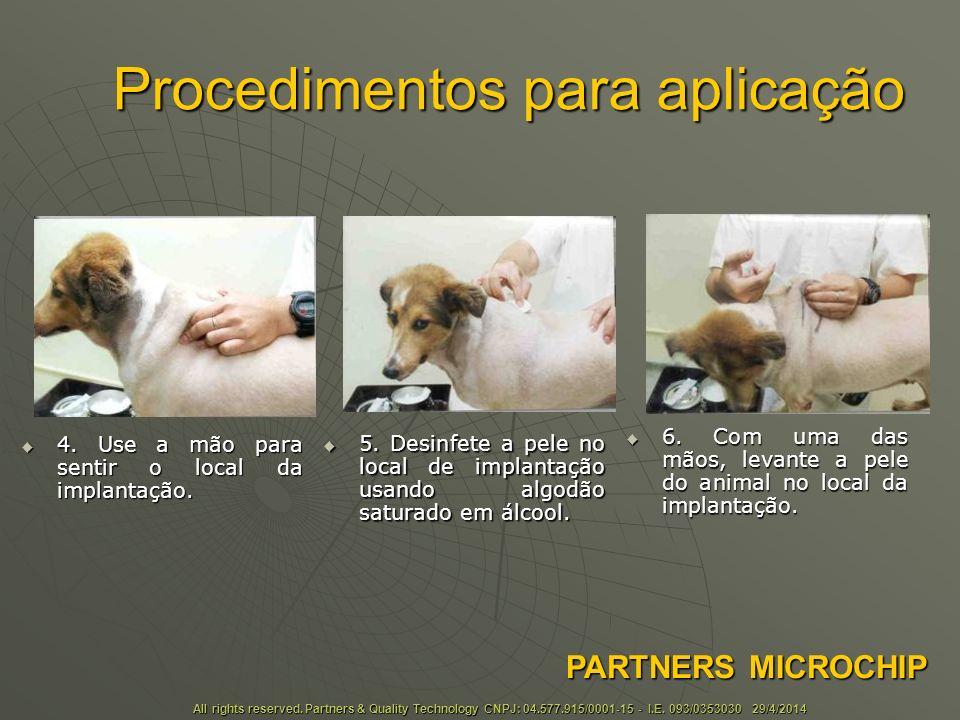 Procedimentos para aplicação 4.Use a mão para sentir o local da implantação.