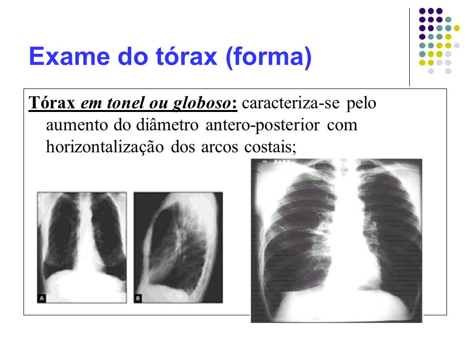 Exame do tórax (forma) Tórax em tonel ou globoso: caracteriza-se pelo aumento do diâmetro antero-posterior com horizontalização dos arcos costais;