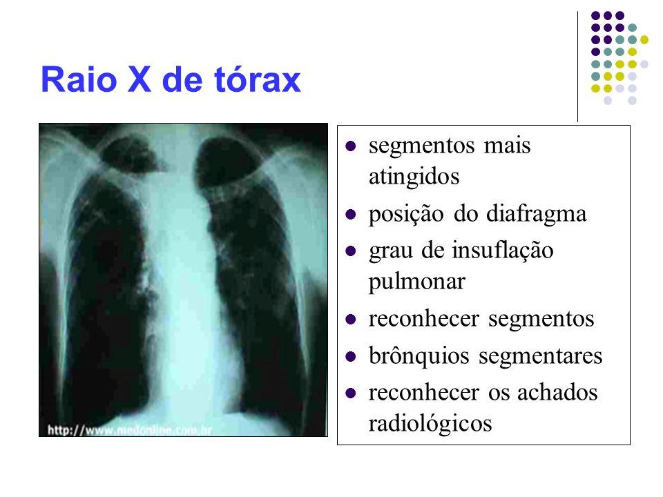 Raio X de tórax segmentos mais atingidos posição do diafragma grau de insuflação pulmonar reconhecer segmentos brônquios segmentares reconhecer os achados radiológicos