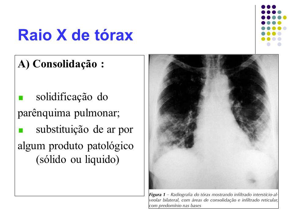 Raio X de tórax A) Consolidação : solidificação do parênquima pulmonar; substituição de ar por algum produto patológico (sólido ou liquido)