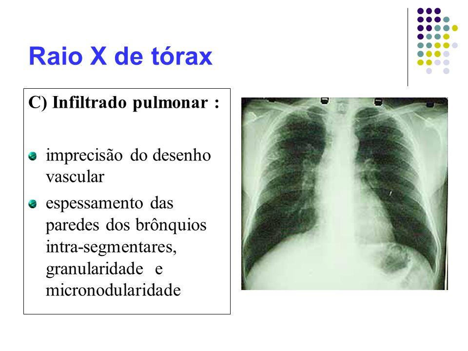 Raio X de tórax C) Infiltrado pulmonar : imprecisão do desenho vascular espessamento das paredes dos brônquios intra-segmentares, granularidade e micronodularidade