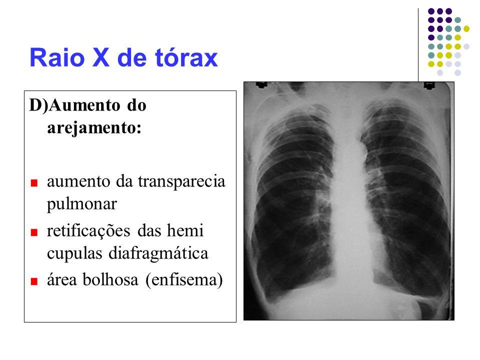 Raio X de tórax D)Aumento do arejamento: aumento da transparecia pulmonar retificações das hemi cupulas diafragmática área bolhosa (enfisema)