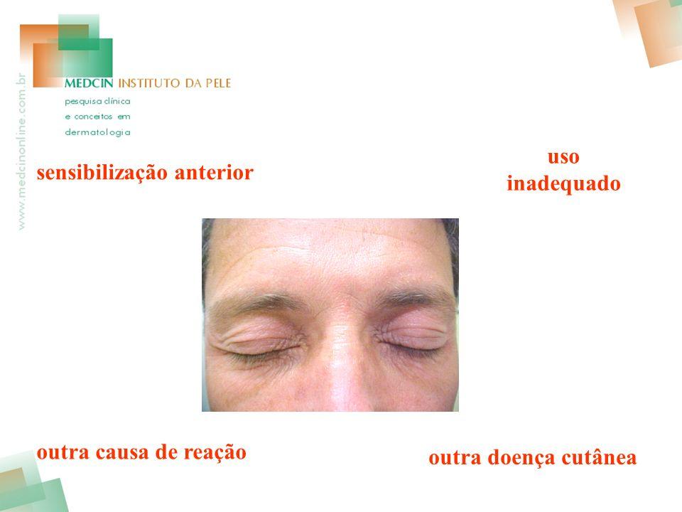 uso inadequado sensibilização anterior outra causa de reação outra doença cutânea