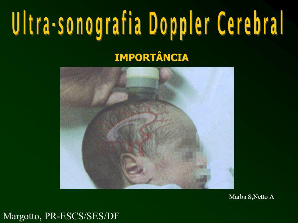 -VFS flutuante - risco elevado - IR (fluxo diastólico zero) severa isquemia cerebral: indicativo prognóstico Hemorragia Peri/Intraventricular Margotto, PR
