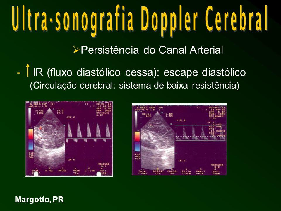 Persistência do Canal Arterial - IR (fluxo diastólico cessa): escape diastólico (Circulação cerebral: sistema de baixa resistência) Margotto, PR