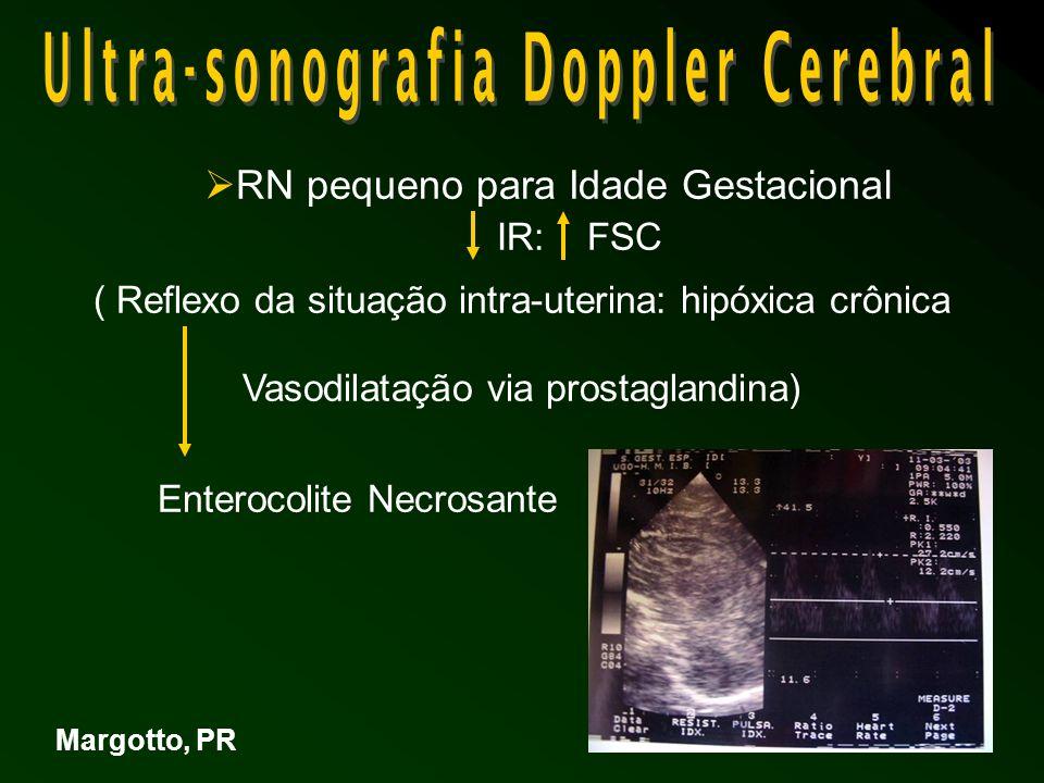 RN pequeno para Idade Gestacional IR: FSC ( Reflexo da situação intra-uterina: hipóxica crônica Vasodilatação via prostaglandina) Enterocolite Necrosante Margotto, PR