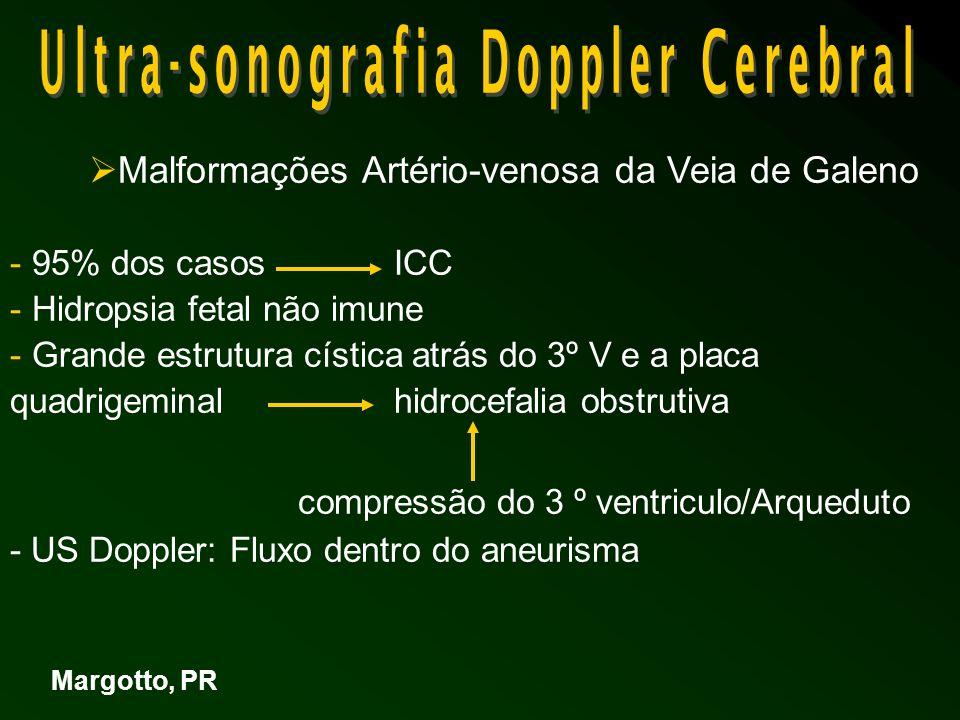 Malformações Artério-venosa da Veia de Galeno - 95% dos casos ICC - Hidropsia fetal não imune - Grande estrutura cística atrás do 3º V e a placa quadrigeminal hidrocefalia obstrutiva compressão do 3 º ventriculo/Arqueduto - US Doppler: Fluxo dentro do aneurisma Margotto, PR