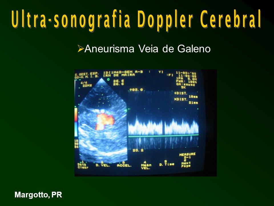 Aneurisma Veia de Galeno Margotto, PR