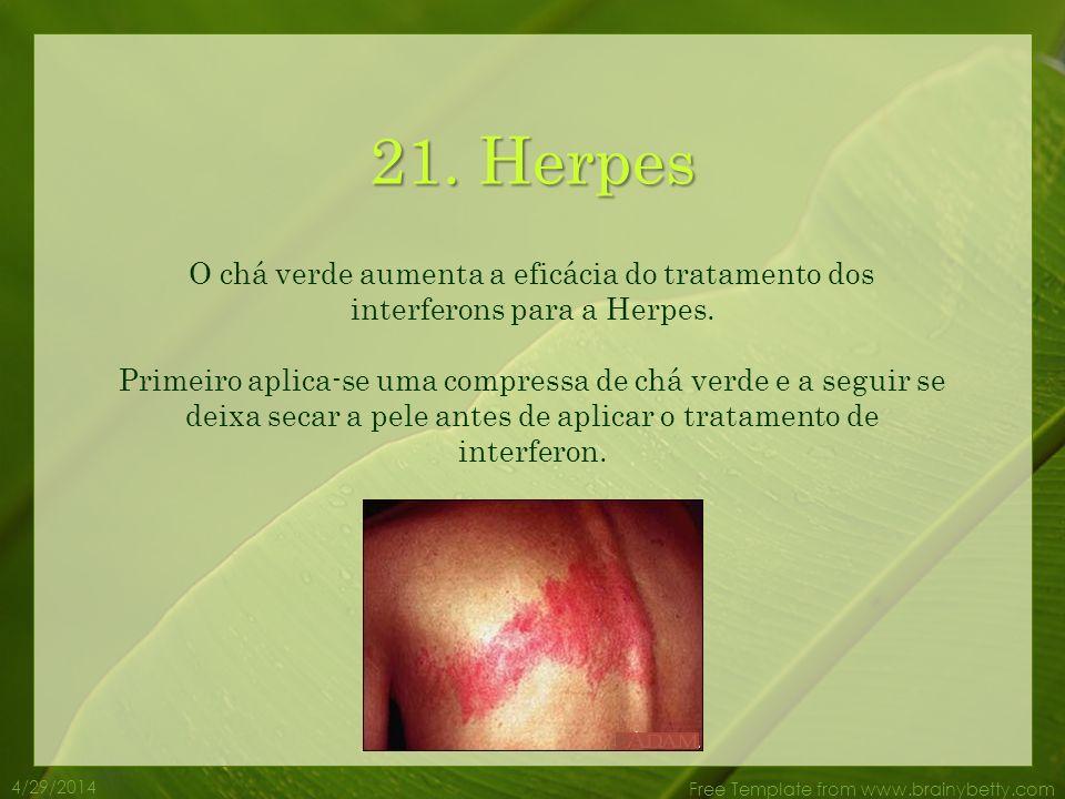 4/29/2014 Free Template from www.brainybetty.com 20. Infecções dos ouvidos O chá verde é uma grande ajuda para combater o problema de infecções de ouv