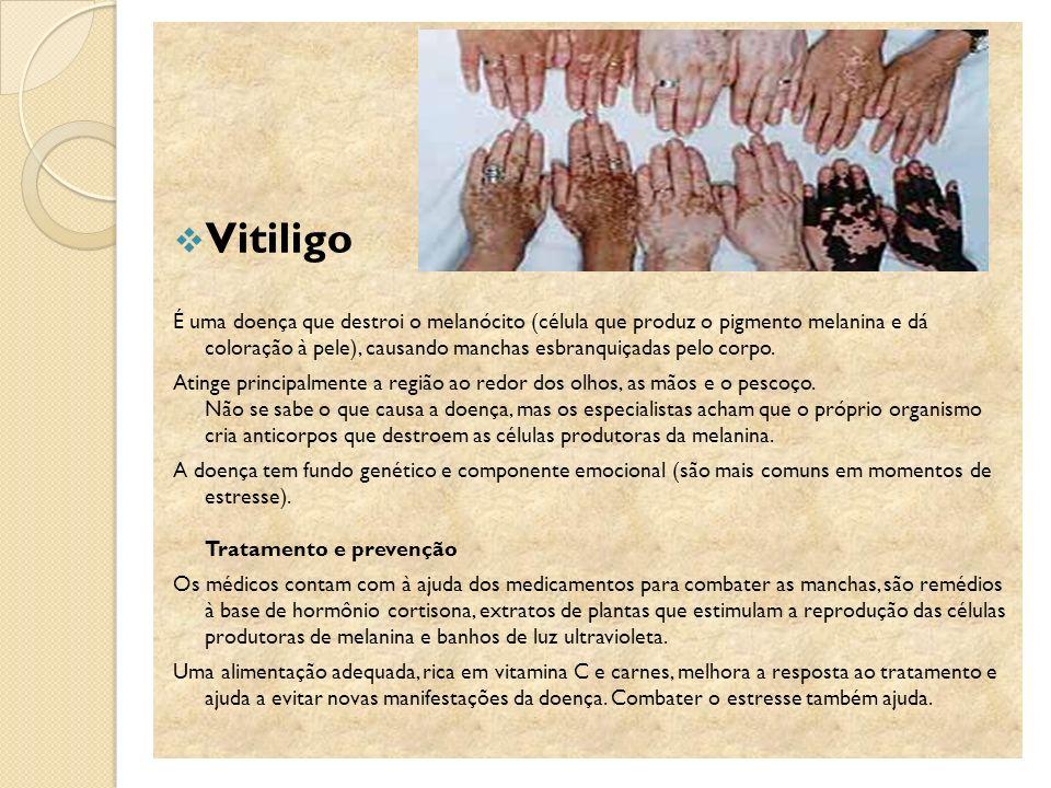 Vitiligo É uma doença que destroi o melanócito (célula que produz o pigmento melanina e dá coloração à pele), causando manchas esbranquiçadas pelo cor