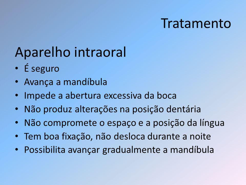 Tratamento Aparelho intraoral É seguro Avança a mandíbula Impede a abertura excessiva da boca Não produz alterações na posição dentária Não compromete