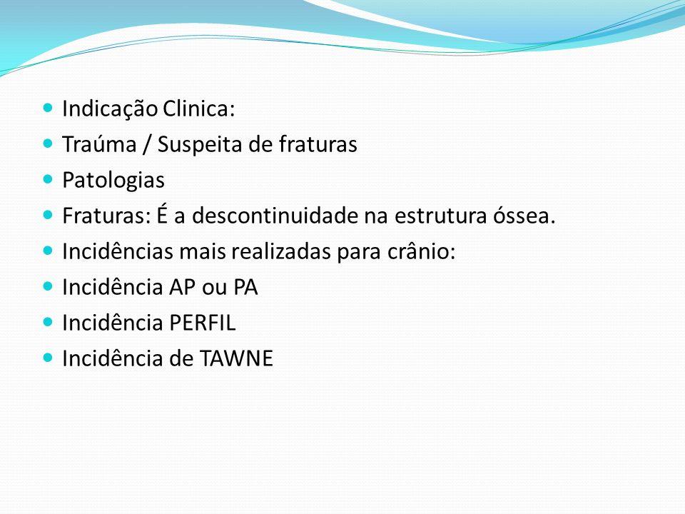 Indicação Clinica: Traúma / Suspeita de fraturas Patologias Fraturas: É a descontinuidade na estrutura óssea. Incidências mais realizadas para crânio: