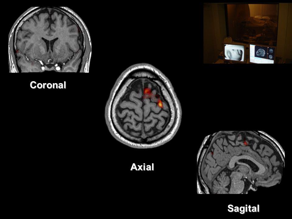 Sagital Coronal Axial