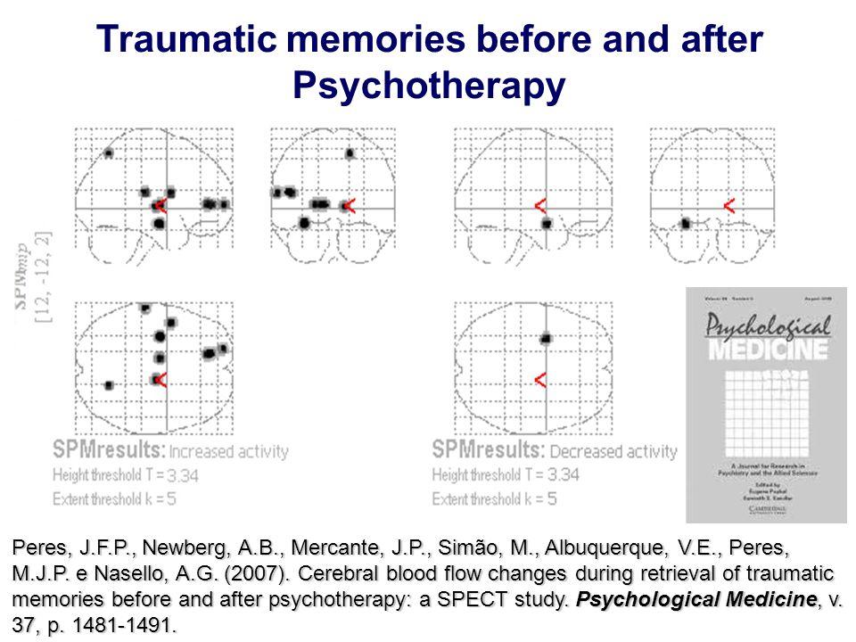 Peres, J.F.P., Newberg, A.B., Mercante, J.P., Simão, M., Albuquerque, V.E., Peres, M.J.P. e Nasello, A.G. (2007). Cerebral blood flow changes during r