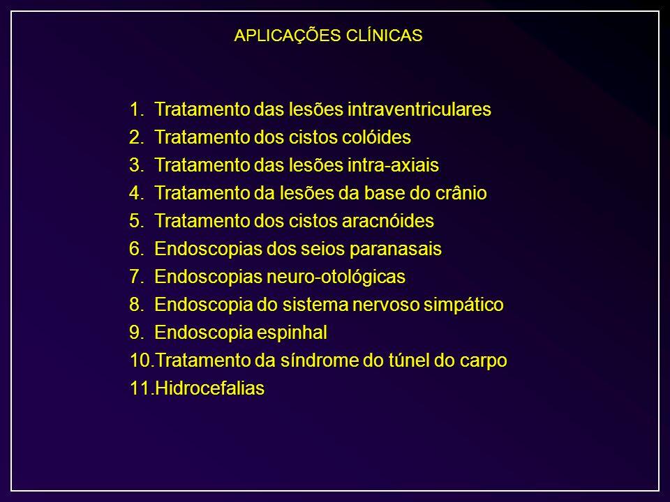 APLICAÇÕES CLÍNICAS 1.Tratamento das lesões intraventriculares 2.Tratamento dos cistos colóides 3.Tratamento das lesões intra-axiais 4.Tratamento da l