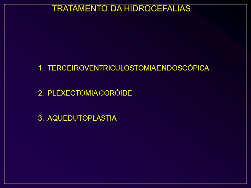 TRATAMENTO DA HIDROCEFALIAS 1.TERCEIROVENTRICULOSTOMIA ENDOSCÓPICA 2.PLEXECTOMIA CORÓIDE 3.AQUEDUTOPLASTIA