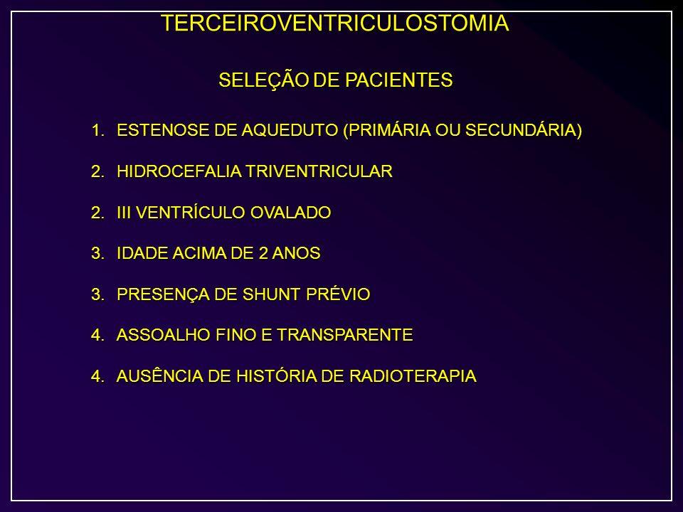 TERCEIROVENTRICULOSTOMIA SELEÇÃO DE PACIENTES 1.ESTENOSE DE AQUEDUTO (PRIMÁRIA OU SECUNDÁRIA) 2.HIDROCEFALIA TRIVENTRICULAR 2.III VENTRÍCULO OVALADO 3