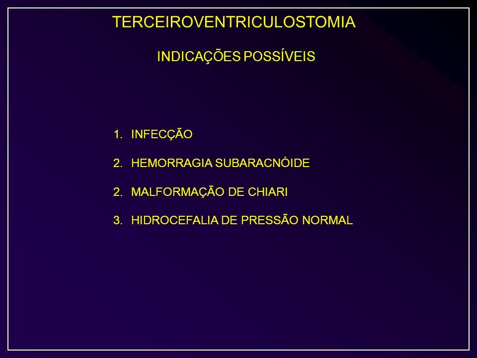 TERCEIROVENTRICULOSTOMIA INDICAÇÕES POSSÍVEIS 1.INFECÇÃO 2.HEMORRAGIA SUBARACNÓIDE 2.MALFORMAÇÃO DE CHIARI 3.HIDROCEFALIA DE PRESSÃO NORMAL