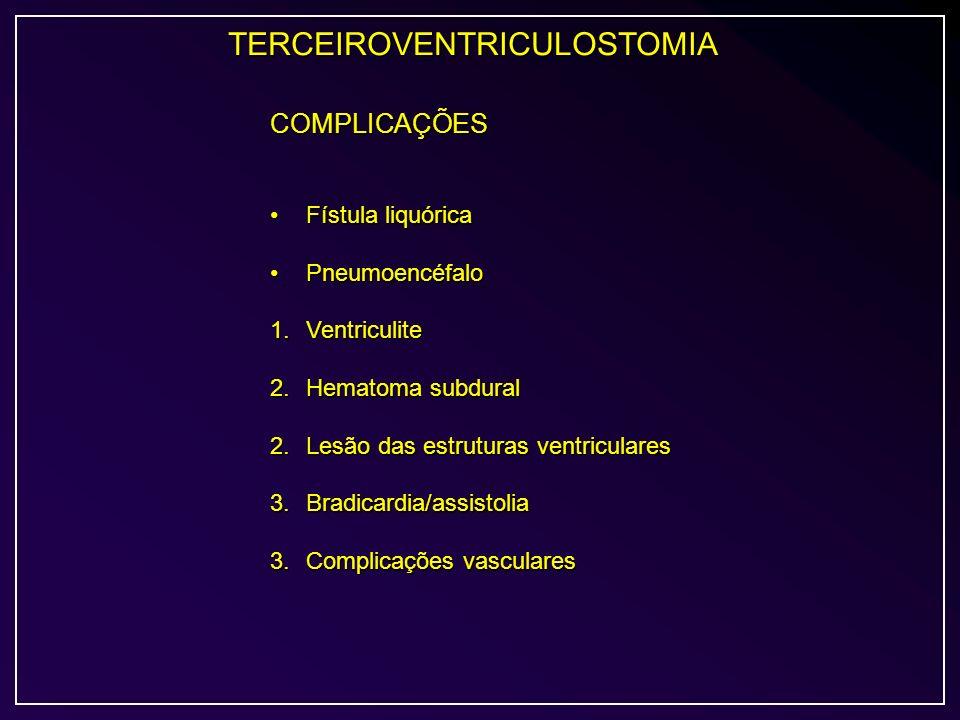 TERCEIROVENTRICULOSTOMIA COMPLICAÇÕES Fístula liquóricaFístula liquórica PneumoencéfaloPneumoencéfalo 1.Ventriculite 2.Hematoma subdural 2.Lesão das e