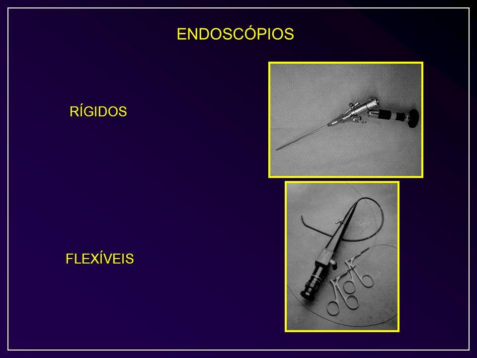 ENDOSCÓPIOS RÍGIDOS FLEXÍVEIS