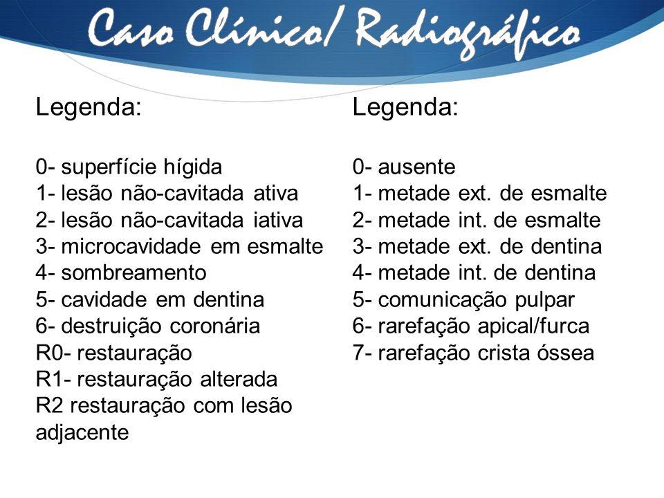 Legenda: 0- superfície hígida 1- lesão não-cavitada ativa 2- lesão não-cavitada iativa 3- microcavidade em esmalte 4- sombreamento 5- cavidade em dent