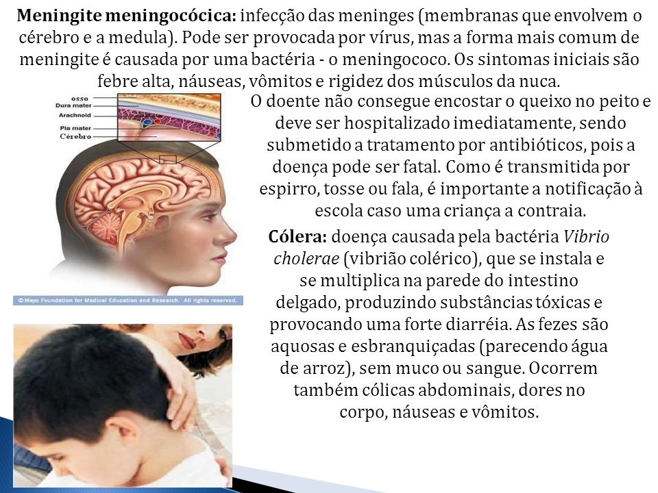 Meningite meningocócica: infecção das meninges (membranas que envolvem o cérebro e a medula). Pode ser provocada por vírus, mas a forma mais comum de