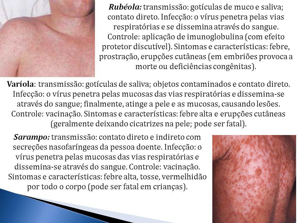 Rubéola: transmissão: gotículas de muco e saliva; contato direto. Infecção: o vírus penetra pelas vias respiratórias e se dissemina através do sangue.