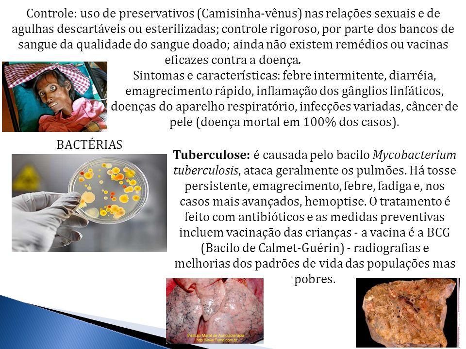 Controle: uso de preservativos (Camisinha-vênus) nas relações sexuais e de agulhas descartáveis ou esterilizadas; controle rigoroso, por parte dos ban
