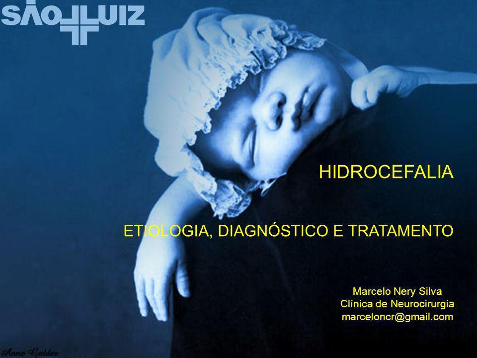 HIDROCEFALIA ETIOLOGIA, DIAGNÓSTICO E TRATAMENTO Marcelo Nery Silva Clínica de Neurocirurgia marceloncr@gmail.com