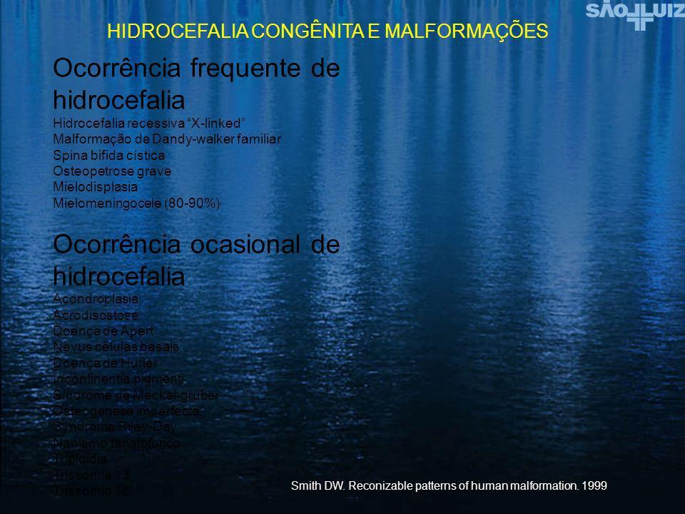 Ocorrência frequente de hidrocefalia Hidrocefalia recessiva X-linked Malformação de Dandy-walker familiar Spina bifida cística Osteopetrose grave Miel