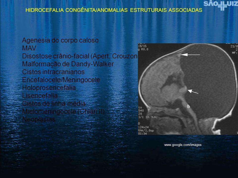 HIDROCEFALIA CONGÊNITA/ANOMALIAS ESTRUTURAIS ASSOCIADAS Agenesia do corpo caloso MAV Disostose crânio-facial (Apert, Crouzon) Malformação de Dandy-Wal