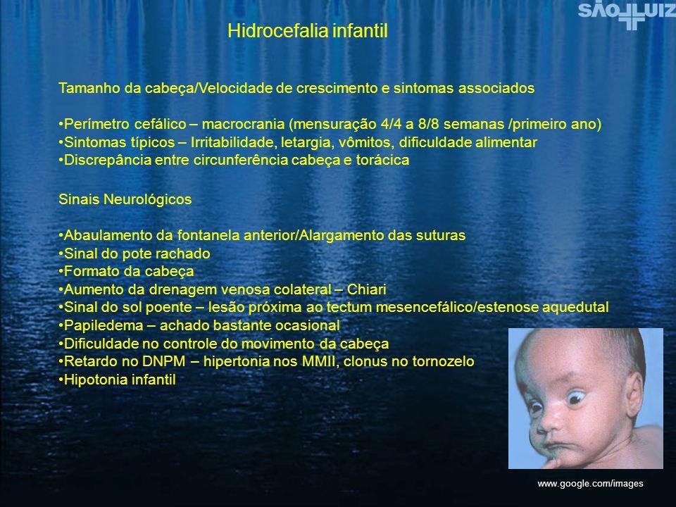 Hidrocefalia infantil Tamanho da cabeça/Velocidade de crescimento e sintomas associados Perímetro cefálico – macrocrania (mensuração 4/4 a 8/8 semanas