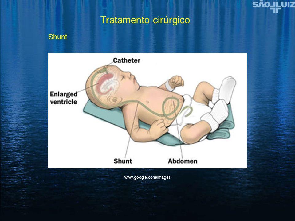 Tratamento cirúrgico Shunt www.google.com/images