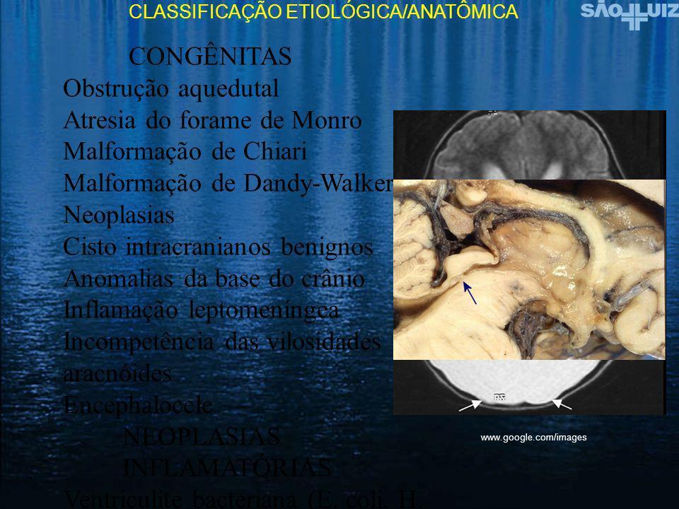 Ocorrência frequente de hidrocefalia Hidrocefalia recessiva X-linked Malformação de Dandy-walker familiar Spina bifida cística Osteopetrose grave Mielodisplasia Mielomeningocele (80-90%) Ocorrência ocasional de hidrocefalia Acondroplasia Acrodisostose Doença de Apert Nevus células basais Doença de Hurler Incontinentia pigmenti Síndrome de Meckel-gruber Osteogenese imperfecta Syndrome Riley-Day Nanismo tanatoforico Triploidia Trissomia 13 Trissomia 18 HIDROCEFALIA CONGÊNITA E MALFORMAÇÕES Smith DW.