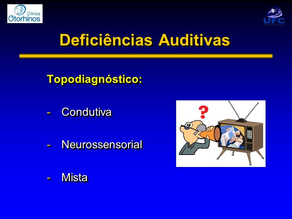 Deficiências Auditivas Topodiagnóstico: -Condutiva -Neurossensorial -Mista Topodiagnóstico: -Condutiva -Neurossensorial -Mista