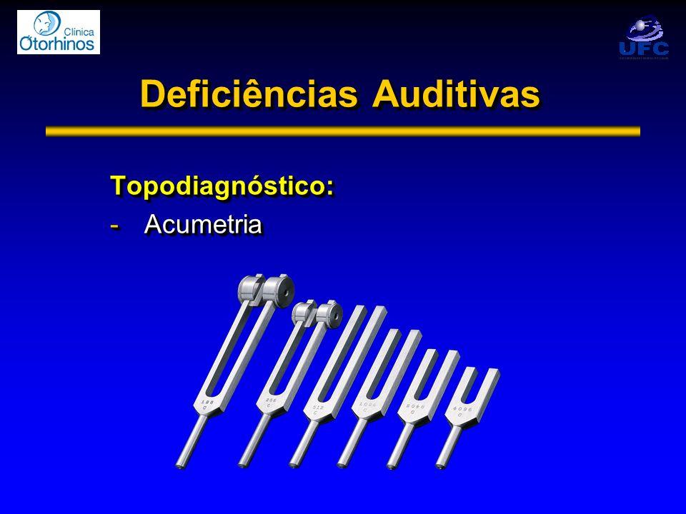 Deficiências Auditivas Topodiagnóstico: -Acumetria Topodiagnóstico: