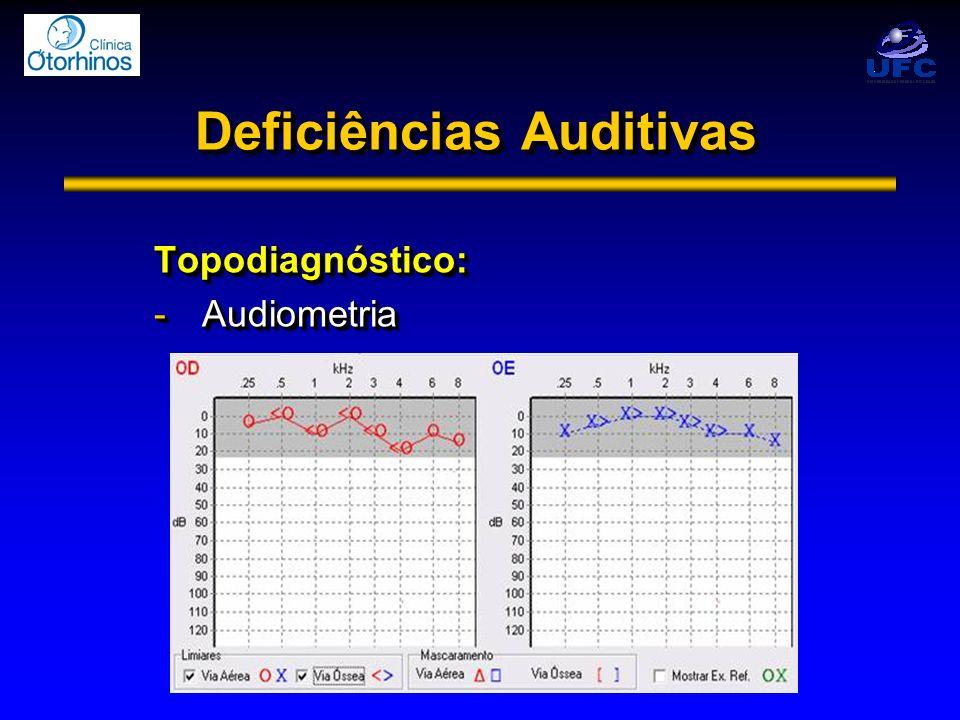 Deficiências Auditivas Topodiagnóstico: -Audiometria Topodiagnóstico: