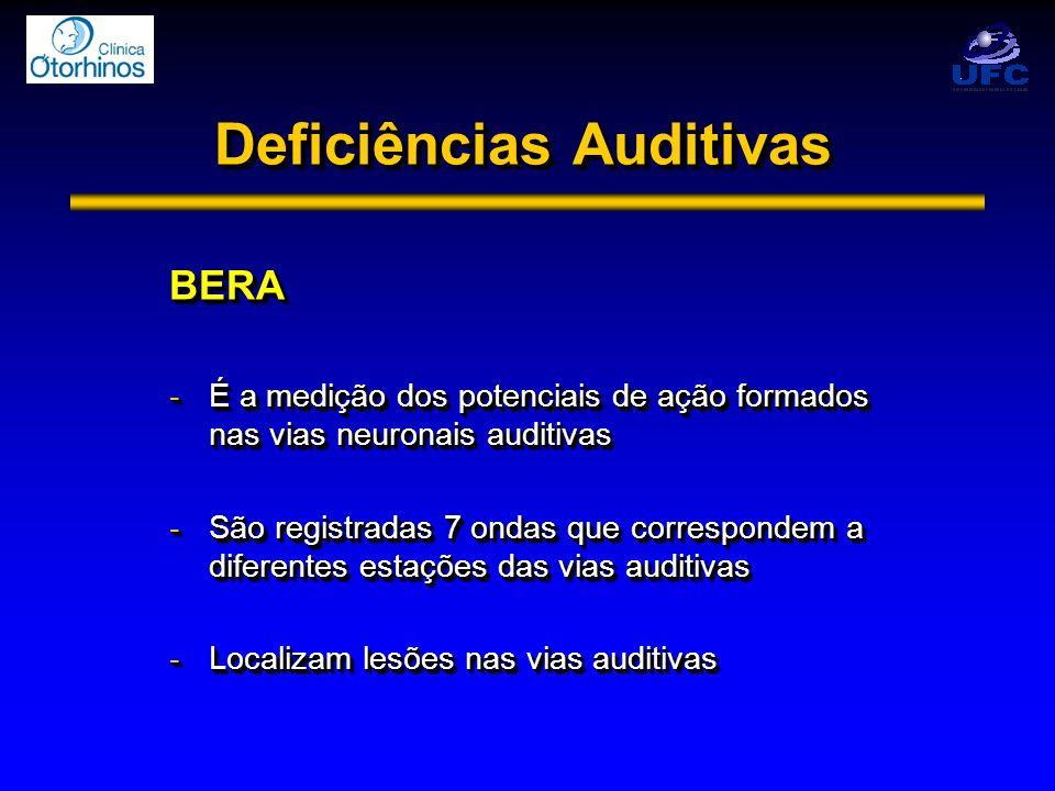 Deficiências Auditivas BERA -É a medição dos potenciais de ação formados nas vias neuronais auditivas -São registradas 7 ondas que correspondem a dife