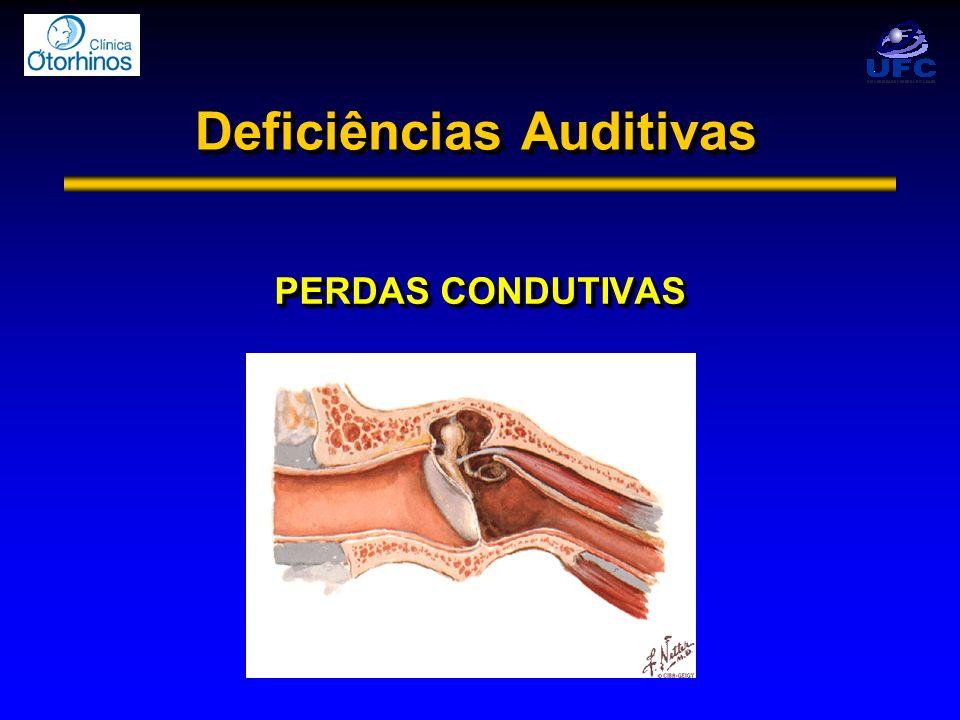 Deficiências Auditivas PERDAS CONDUTIVAS