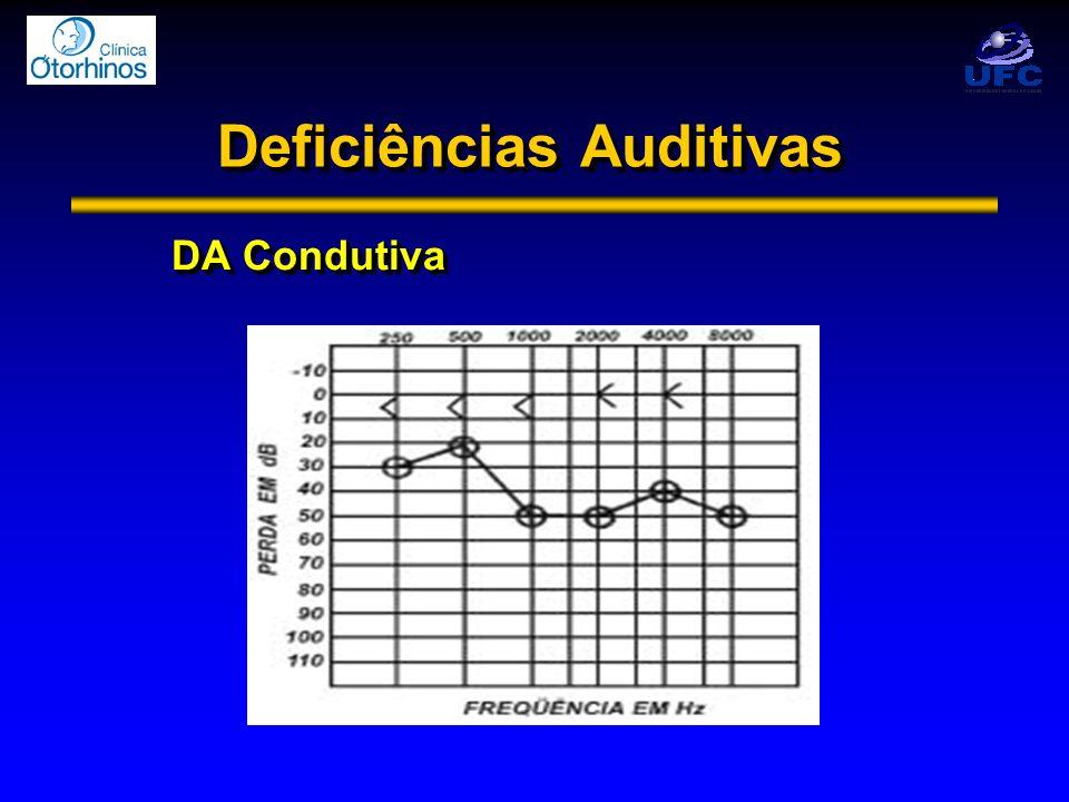 Deficiências Auditivas DA Condutiva