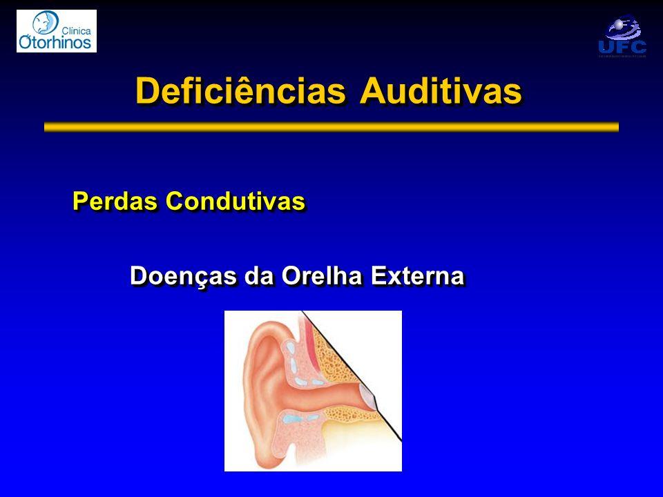 Deficiências Auditivas Perdas Condutivas Doenças da Orelha Externa Perdas Condutivas Doenças da Orelha Externa