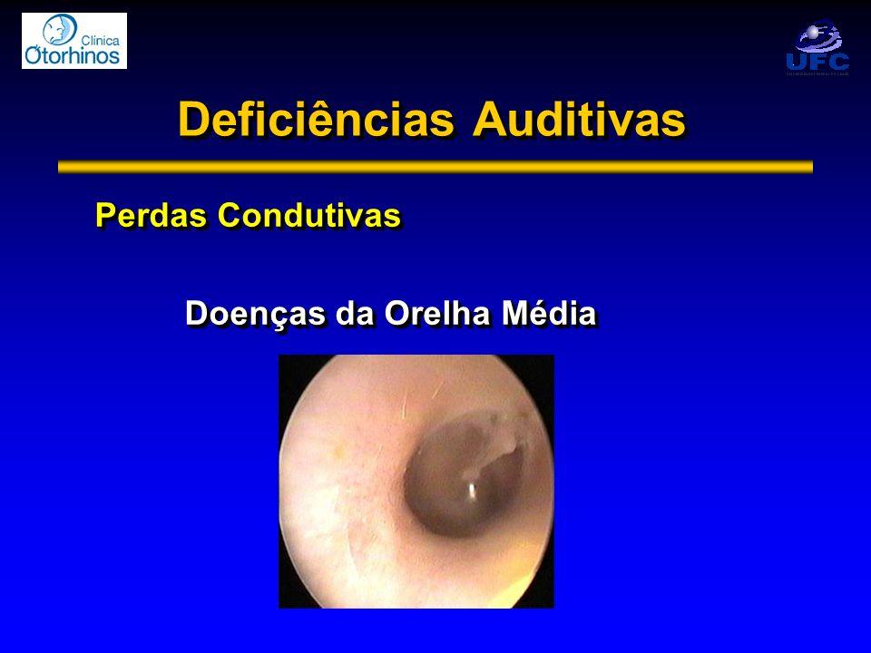 Perdas Condutivas Doenças da Orelha Média Perdas Condutivas Doenças da Orelha Média
