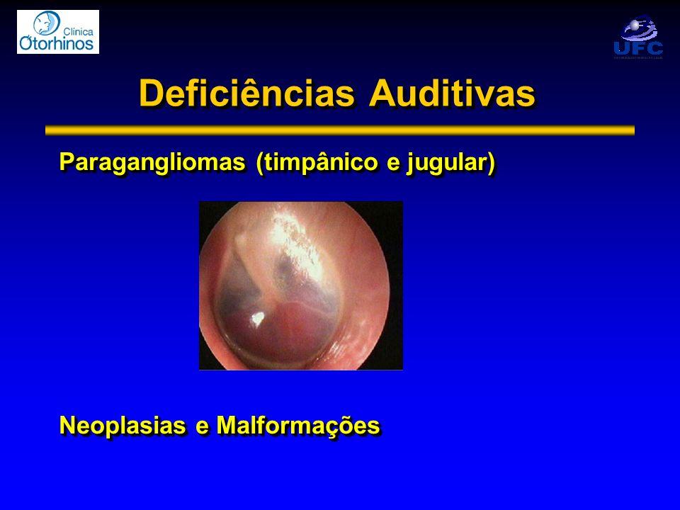 Paragangliomas (timpânico e jugular) Neoplasias e Malformações Paragangliomas (timpânico e jugular) Neoplasias e Malformações