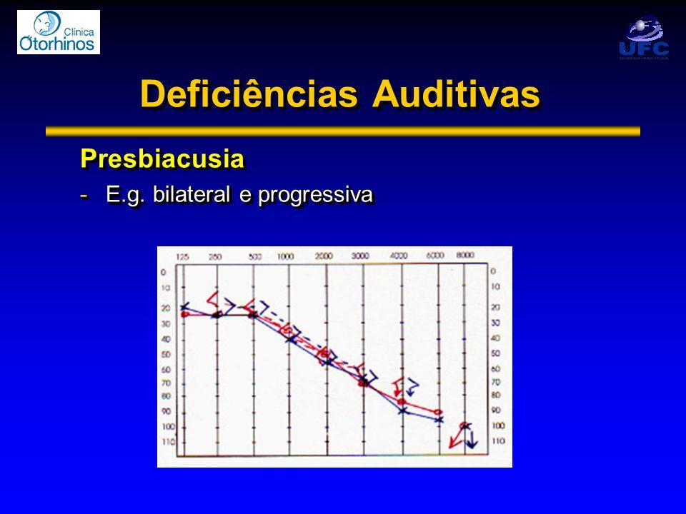 Deficiências Auditivas Presbiacusia -E.g. bilateral e progressiva Presbiacusia