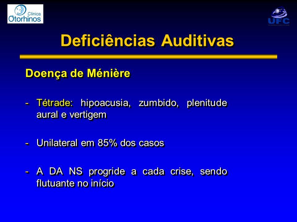 Deficiências Auditivas Doença de Ménière -Tétrade: hipoacusia, zumbido, plenitude aural e vertigem -Unilateral em 85% dos casos -A DA NS progride a ca