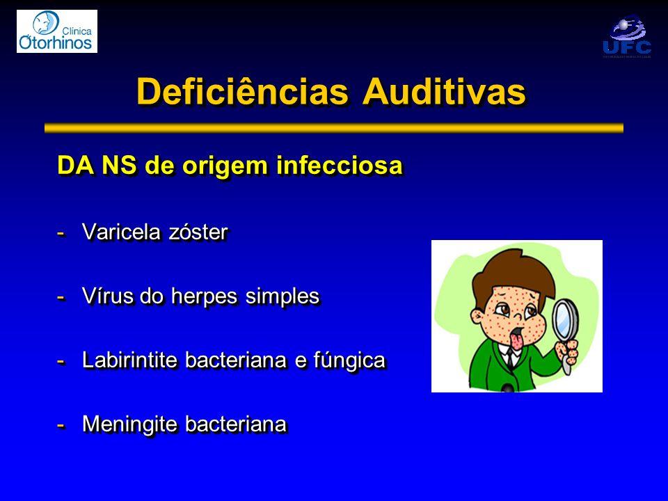 Deficiências Auditivas DA NS de origem infecciosa -Varicela zóster -Vírus do herpes simples -Labirintite bacteriana e fúngica -Meningite bacteriana DA