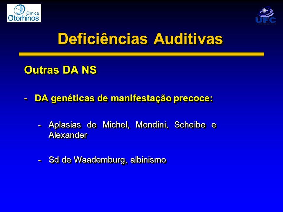Deficiências Auditivas Outras DA NS -DA genéticas de manifestação precoce: -Aplasias de Michel, Mondini, Scheibe e Alexander -Sd de Waademburg, albini