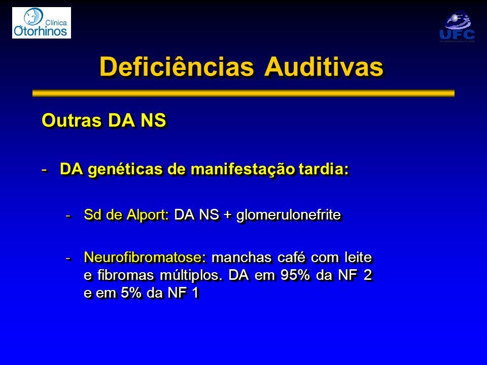 Deficiências Auditivas Outras DA NS -DA genéticas de manifestação tardia: -Sd de Alport: DA NS + glomerulonefrite -Neurofibromatose: manchas café com