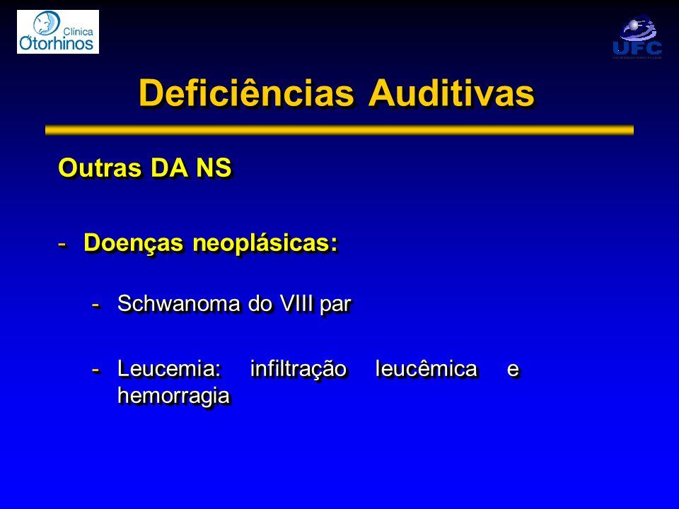 Deficiências Auditivas Outras DA NS -Doenças neoplásicas: -Schwanoma do VIII par -Leucemia: infiltração leucêmica e hemorragia Outras DA NS -Doenças n