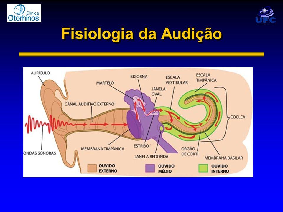 Deficiências Auditivas Anacusia ou Cofose
